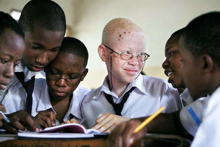site de rencontre albinos rencontres washington